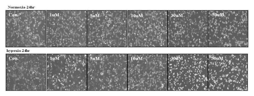 DHA에 의한 M DA-MB-231 세포 변화