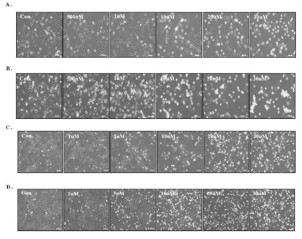 유방암 세포주에서 KML001에 의한 세포 모양 변화 관찰