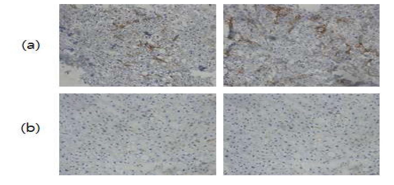 그림 77. HBV 감염 사람 간염조직에서의 반응성