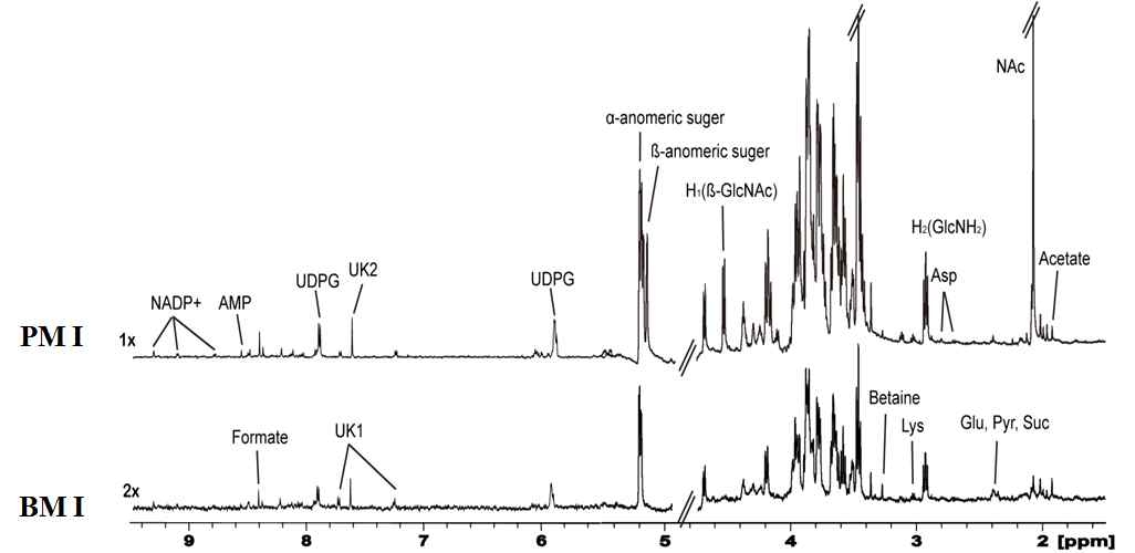 부유 상태와 생체막 상태의 대표적인 NMR 스펙트럼