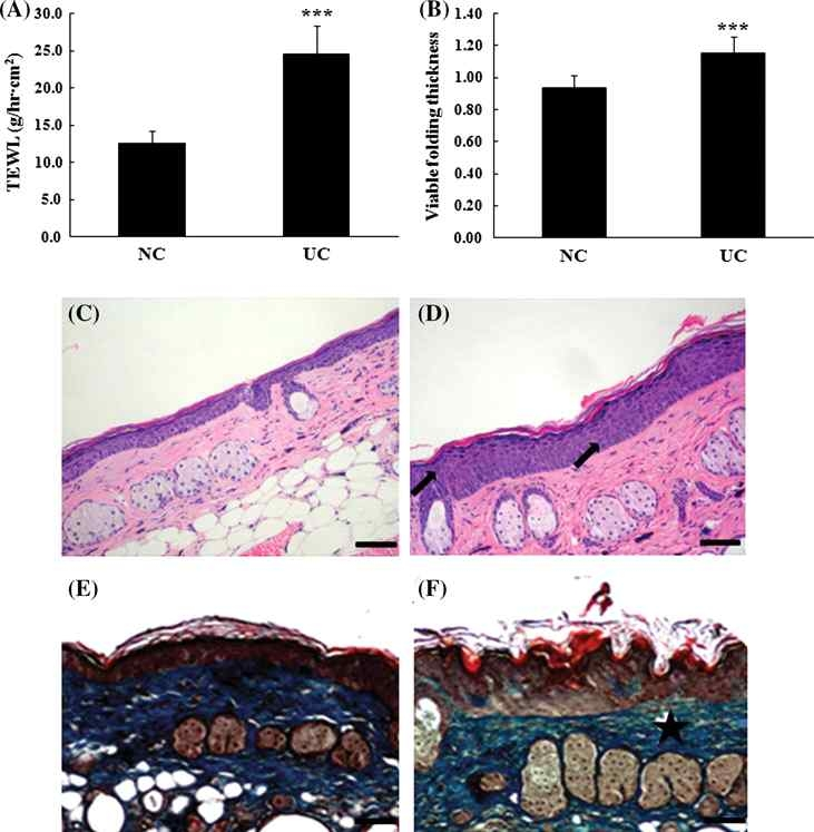 TEWL (a), epidermal thickness (b), histological appearance (c, d), and Masson's trichrome staining (e, f) of hairless mouse skin from the NC (c, e) and UC (d, f) groups after UVB irradiation for 12 weeks.