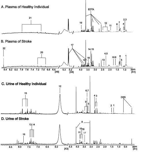 정상인과 중풍 환자의 혈액과 소변의 NMR 스펙트럼