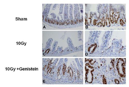 방사선조사에 의한 증식세포에 Genistein 의 보호효과