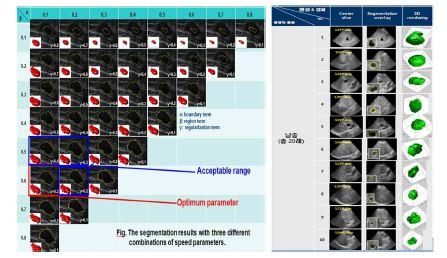 그림 1. 유방 및 간 초음파 영상에서 종양 분할 결과