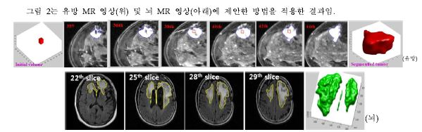 그림 2. 유방 및 뇌 MR 영상에서 종양 분할 결과