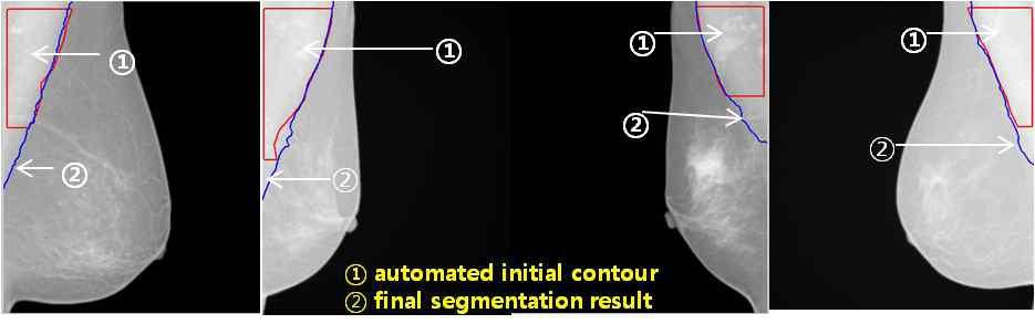 그림 7. 자동으로 초기화된 initial contour 및 흉근분할 결과