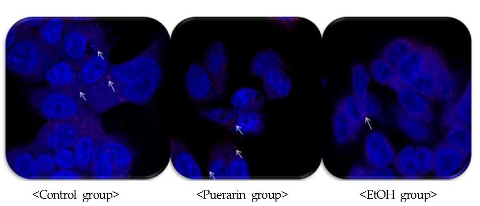 LC3 antibody와 DAPI 염색을 통한 세포의 IHC 이미지