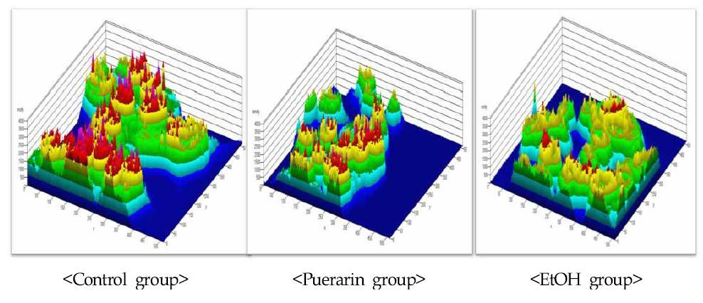 간조직 세포중 LC3 단백질 발현의 3D 분석