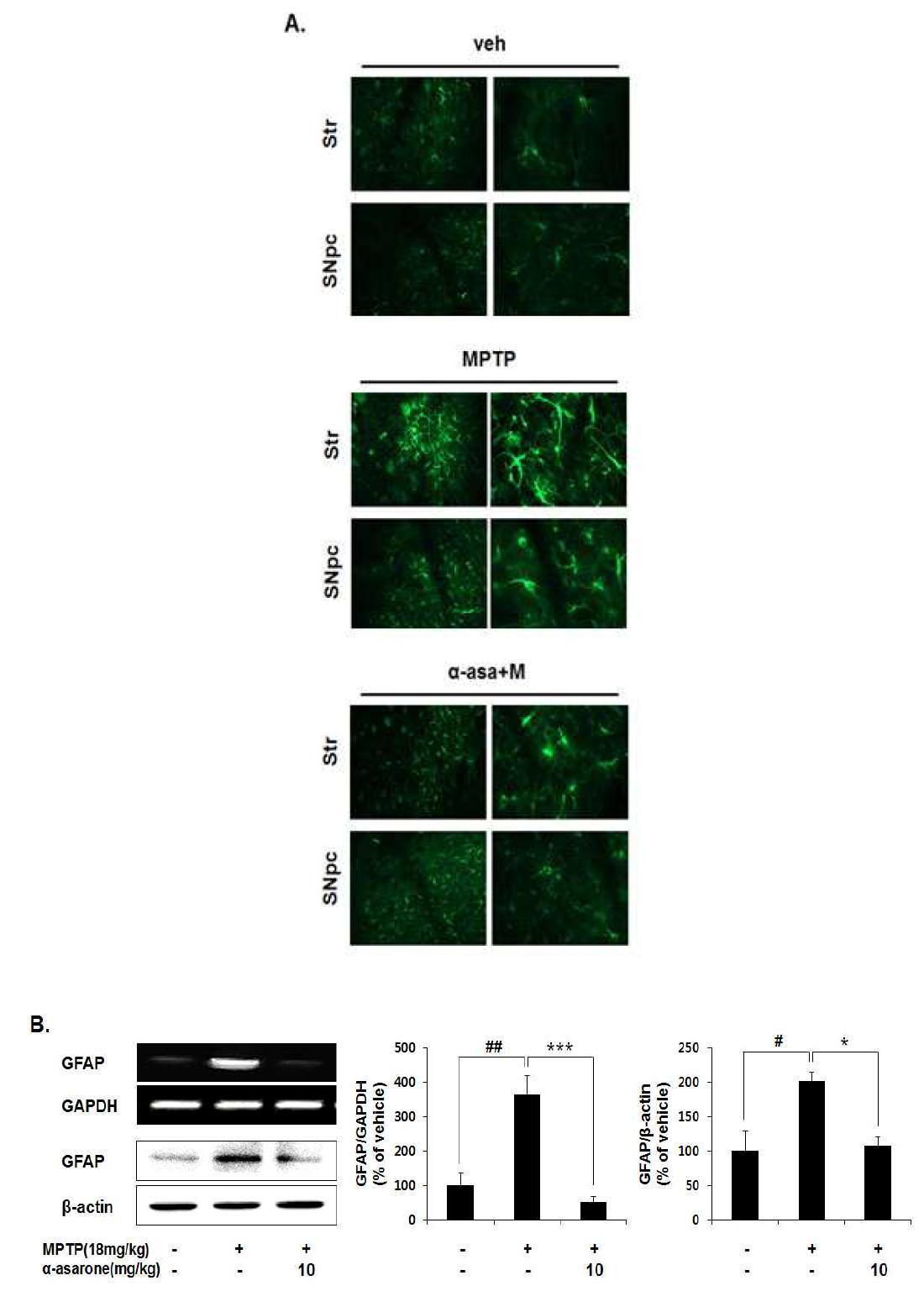 α-Asarone suppression of MPTP-induced activated astroglia