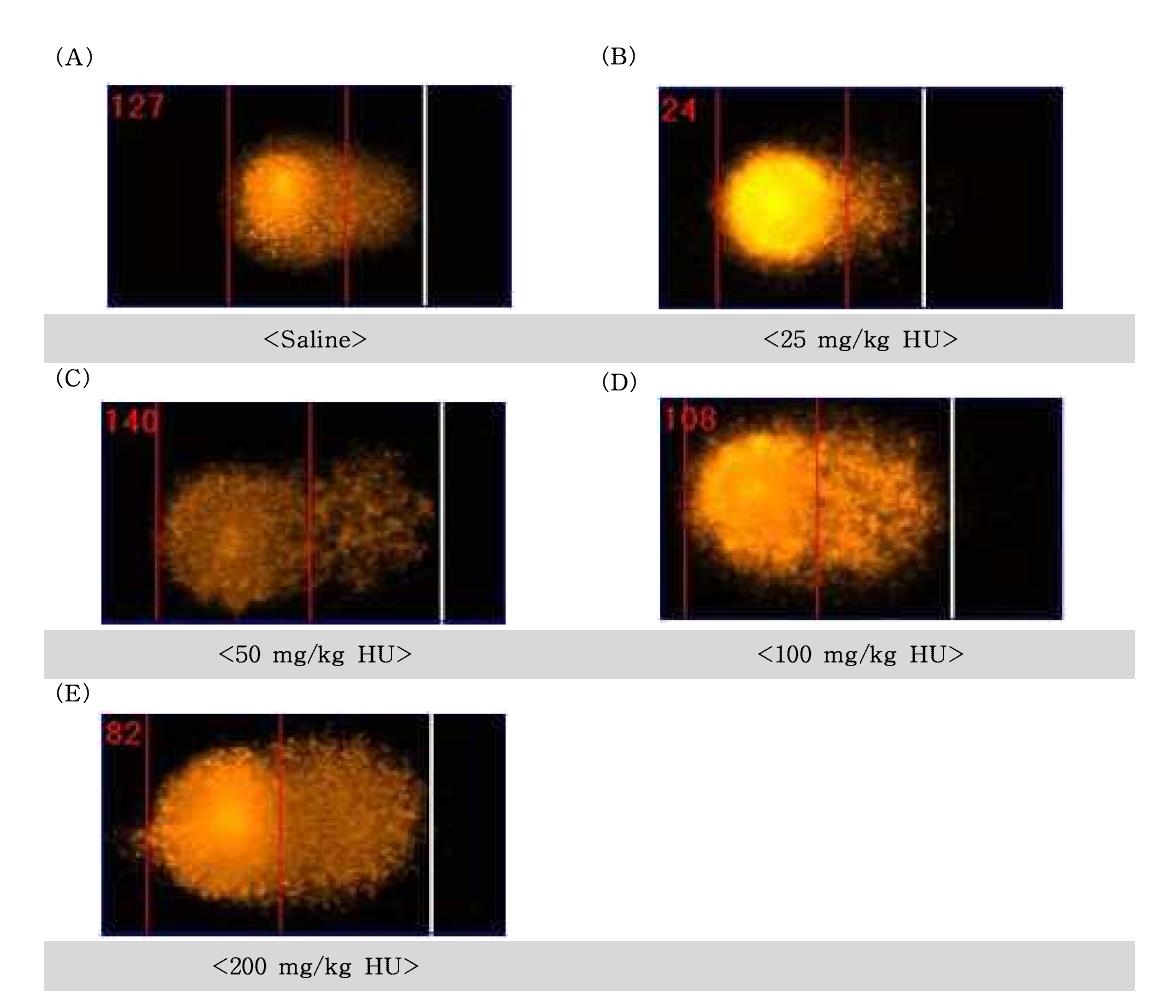 Hydroxyurea(HU)에 대한 정자의 comet image