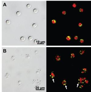 A) 대조군 Chlorella sp. KR-1 B) 알칼리 및 초음파 처리된 Chlorella sp. KR-1