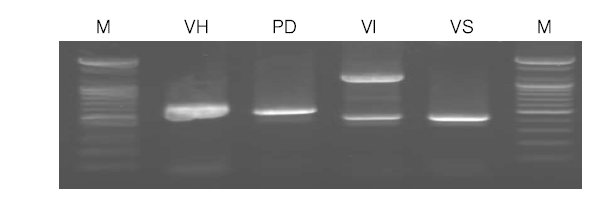 Rapid identification of four Vibrio spp. by Multiplex-PCR