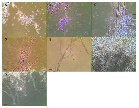 수입배지에서 분리된 진균의 현미경적 특징.