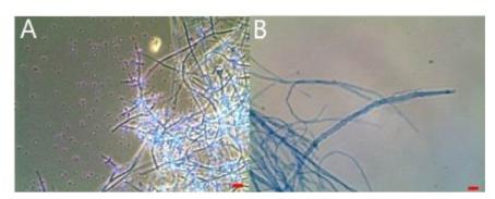 분리 균주의 현미경 사진.