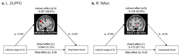 인터넷 게임 평생 이용시간과 우울감 간의 관계에서 뇌의 구조적 변화가 미치는 영향
