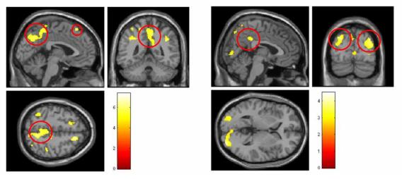 게임화면 제시 시 관찰된 집단 간 뇌활성화의 차이