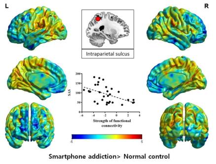 스마트폰 과의존과 내측두엽-전두엽간 뇌기능연결성 지표의 상관관계