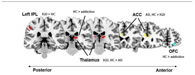 ACC와의 휴지기 상태의 기능적 연결성을 갖는 뇌 영역