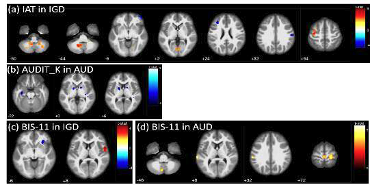 Correlation of clinical symptoms with regional glucose metabolism in Internet gaming disorder and alcohol use disorder