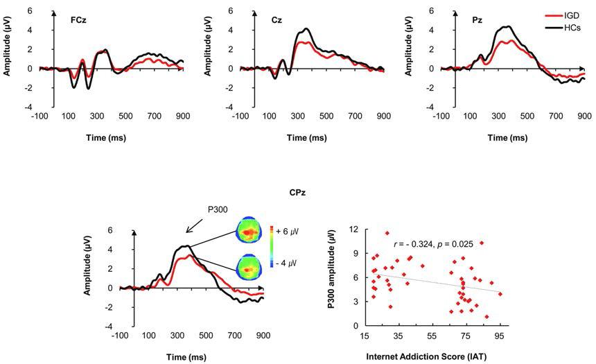 인터넷 게임 중독군과 정상 대조군에서 deviant tone 청각자극에 대한 grand-averaged ERP waveforms (위쪽), centro-midline에서 P300 진폭의 그룹간 차이 양상 (아래쪽 좌측) 및 인터넷 중독 임상증상과의 부적 상관 관계 (아래쪽 우측)