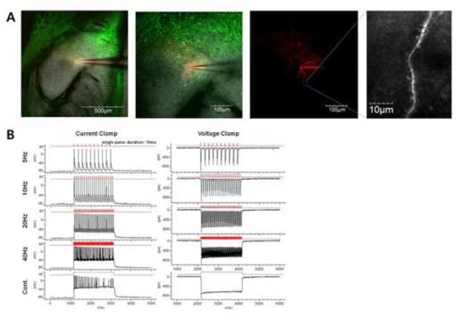CeA의 D2R 발현 세포를 대상으로 진행한 전기생리학 실험 결과.
