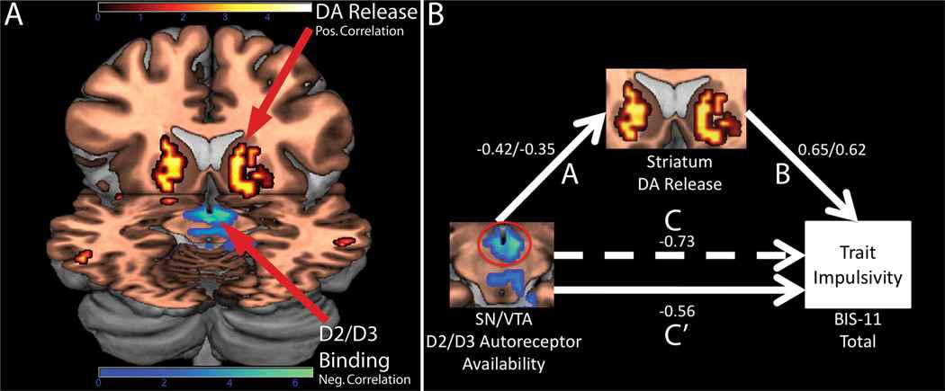 충동성 행동을 보이는 사람들의 뇌에서의 중뇌 도파민 수용체 D2/D3 신호 감소 및 충동 성 성향과의 관계