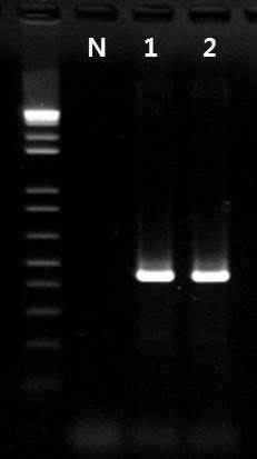Listeria monocytogenes 프라이머의 inclusivity test