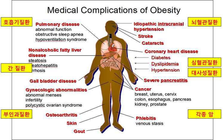 비만으로 인해 유발되는 각종 성인 만성 질환