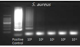 LAMP의 검출한계 평가를 위한 다양한 농도를 가지는 S. aureus DNA의 LAMP 증폭과 증폭산물의 전기영동 결과