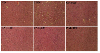 Effect of PAE for 6 weeks on hepatic morphology in C57BL/6J mice fed high-fat diet.