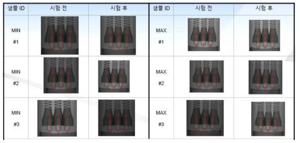 X-Ray 분석 자료
