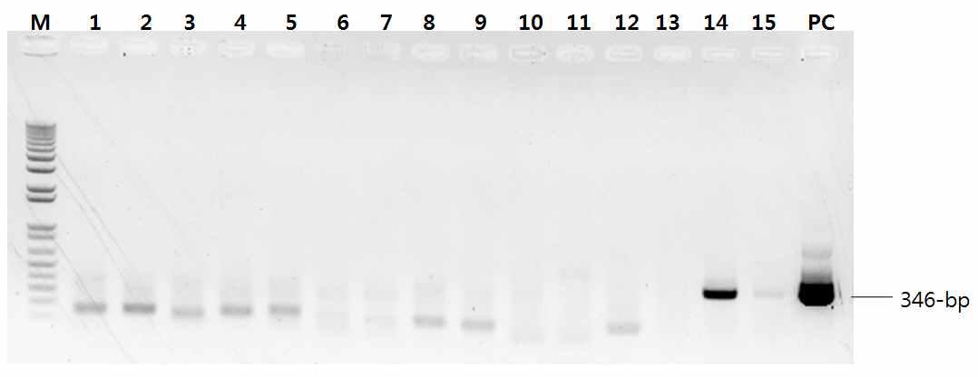 RT-nested PCR을 이용한 SFTS 바이러스 검출시험 결과 사진