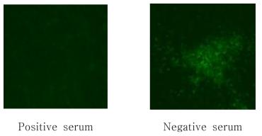양성 및 음성혈청을 이용한 FA-VN 결과 비교