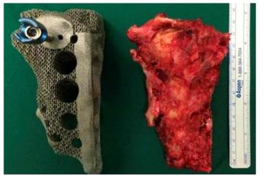 왼쪽. 3D 프린터로 제작한 골반 뼈, 오른쪽. 환자의 골반 뼈