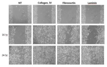 다양한 세포외기질 성분이 인간 기관 상피세포의 세포 이동성에 미치는 영향