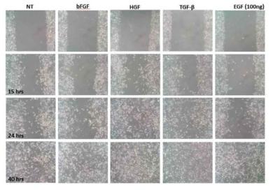 성장인자 종류에 따른 인간 기관 상피세포의 이동성의 차이