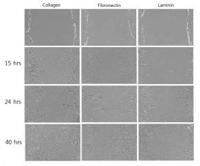 다양한 세포외기질이 도포된 배양접시에서의 지방유래 줄기세포의 이동성 확인