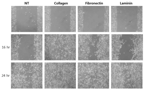 다양한 세포외기질이 도포된 배양접시에서의 인간기도상피세포의 이동성 확인