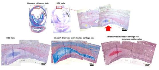 [다섯번째 시도-2] 이식되었던 기관 지지체 윗부분 (성대 쪽)의 조직병리학적 방법을 통한 신생연골 평가. hBM-MSC를 도포해준 지지체 외부의 조직에서 신생연골로 사료되는 부분을 두 곳 확인 함 (Yellow asterisks on H&E stained image: 상단 오른쪽). H&E,Masson's trichrome, 그리고 Safranin O 염색을 한 후, 상단 오른쪽 붉은 화살표로 표시한 부분을 확대한 이미지들 (하단)