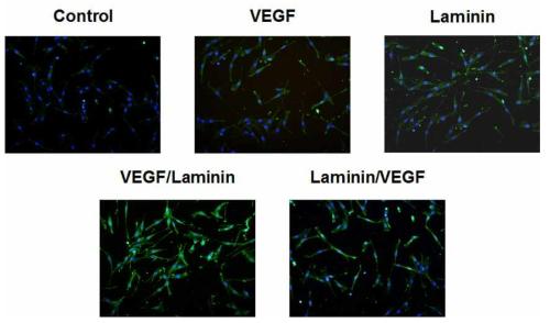 14일 배양 후, 기관재생유도막 내 점착된 평활근세포의 면역형광염색 사진(Nuclei-blue, α-SMA-green)