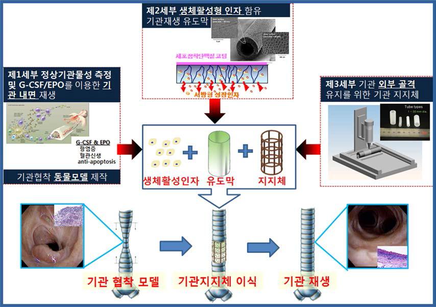 생체활성형 기관 유도관/3D printing 기법으로 제작된 생체 모사형 기관 지지체 복합체의 개발