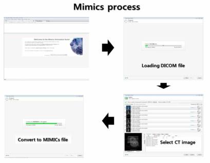 전용 소프트웨어를 이용한 DICOM file의 데이터선별 및 시각화 작업