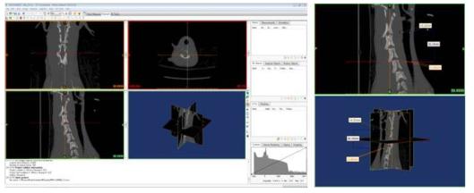 Mimics의 인터페이스 및 실제 측정값