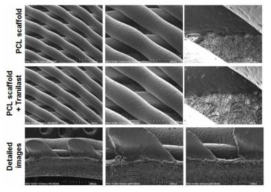 파이버 지지체 위에 3D 프린팅 후 전자주사현미경사진