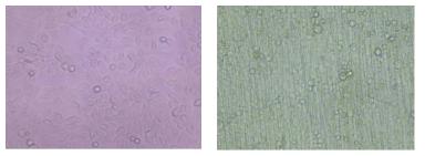정상적인 HMEEC 배양. 왼) 일반 culture dish에서의 HMEEC 배양, 200X; 오) Transwell insert에서의 HMEEC 배양, 200X