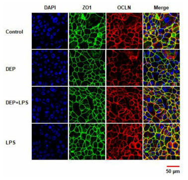 일차 인체 비강상피세포의 배양 ALI 12일에서의 ZO1 과 occludin의 세포막에서의 발현 및 DEP에 의한 ZO1 과 occludin의 재배열 및 그에 미치는 LPS의 영향