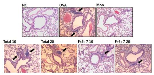 참오동나무 열매 추출물과 분획물은 ovalbumin으로 유발된 천식마우스 폐조직내 염증세포의 침윤 억제 효과