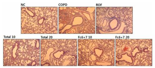 참오동나무 열매 추출물과 분획물은 담배연기로 유발된 COPD 마우스 폐조직내 염증세포의 침윤억제 효과