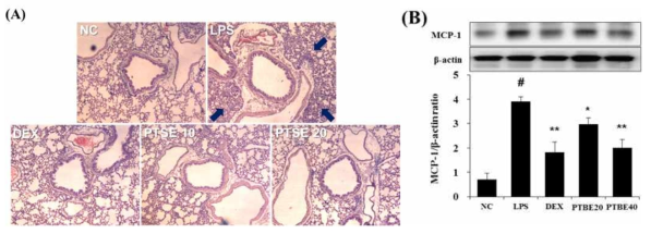 The extract of P. tomentosa stem bark (PTBE) inhibits the infiltration of inflammatory cells and the expression of MCP-1 in the lung of ALI mice. (A) Peribronchial lesion (magnification, ×400) in the lung was stained with H&E solution. (B) MCP-1 expression was investigated using Western blot analysis. Data are expressed as the mean ± S.D. #p< 0.01 indicates statistically significantly different from normal control group. *p < 0.05 and **p < 0.01 indicates statistically significant difference compared to the LPS group