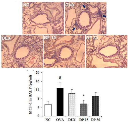BF inhibits the influx of inflammatory cells and the production of MCP-1 in the lung and BALF of OVA-induced asthma animal model. (A-B) The levels of inflammatory cells influx and MCP-1 production were measured using H&E staining and ELISA assay. The absorbance was measured at 450 nm using microplate reader. Data are expressed as the mean ± S.D. #p< 0.01 indicates statistically significantly different from normal control group. *p < 0.05 indicates statistically significant difference compared to the OVA group